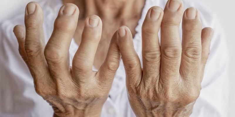 Promueve Salud Pública detección oportuna de artritis reumatoide